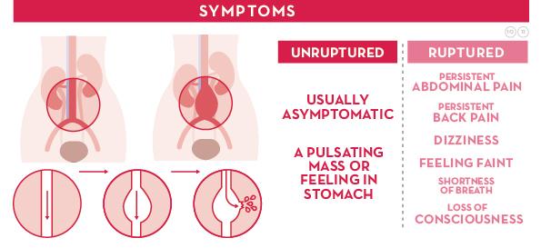 abdominal aortic aneurysm treatment, abdominal aortic aneurysm, Human Body